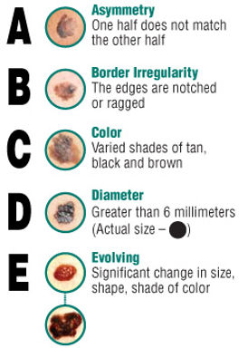 Tips for checking suspicious moles