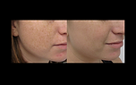 IPL BBL for freckles brown spot removal