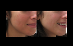 IPL BBL for rosacea redness reduction