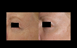 Skin Rejuvenation laser profractional resurfacing botox