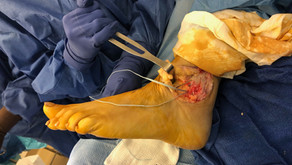 A Neglected Injury turned into a Successful Surgery