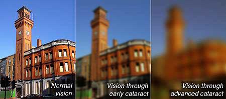 Olympia Optics - Cataract Vision