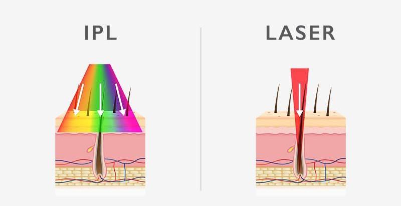 IPL vs. Laser Hair Removal