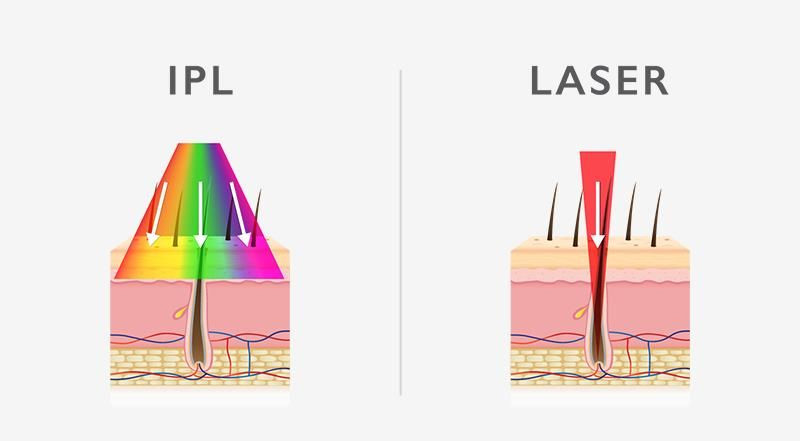 Aesthetic Centre Olympia - IPL vs Laser Hair Removal
