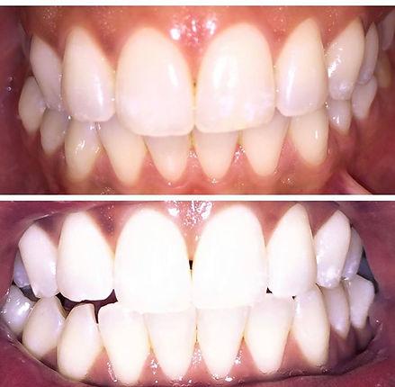 Teeth Whitening .jpg