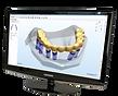 3D моделирование в производстве протезов существенно ускоряют процесс изготовления протезов