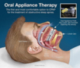 oral-appliance-therapy.jpg