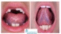 Tongue tie release Harmony.jpg