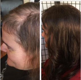 Sleek Style and Design Hair loss and Trichotillomania before and after with extensions