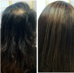 Sleek Style Salon Trichotillomania before and after picture