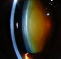 Brunescent Nuclear Cataract_NEI NASA DLS