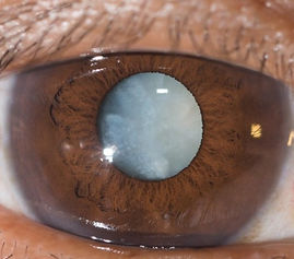 cataract-canstockphoto_edited.jpg
