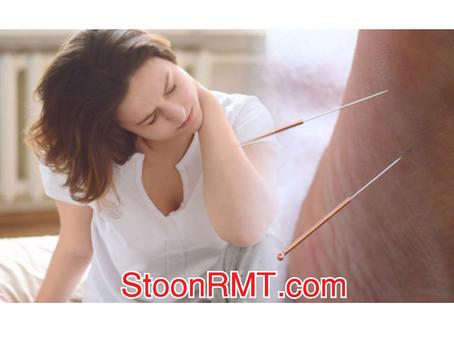 Fibromyalgia & Acupuncture
