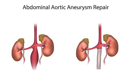 bigstock-Abdominal-Aortic-Aneurysm-Repa-