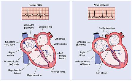 atrial fibrillation 2.jpg