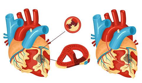 bigstock-Anatomy-Of-Heart-With-Coronary-