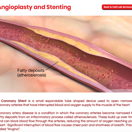 Coronary Stent & Angioplasty