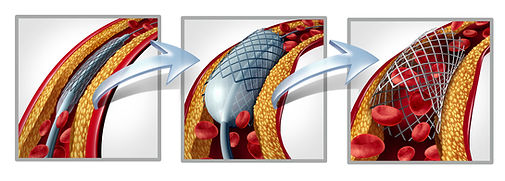 bigstock-Coronary-Stent-And-Angioplasty-