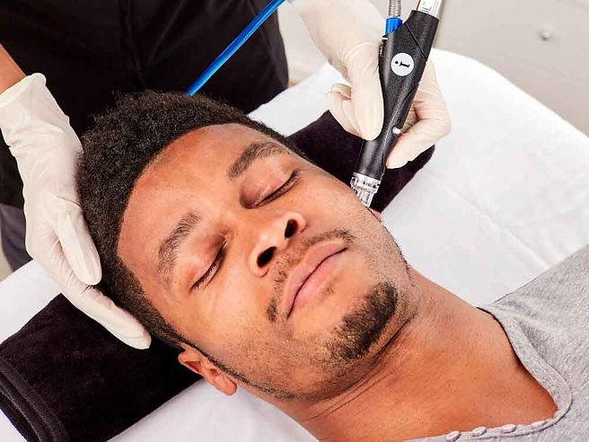 hydrafacial-treatment-men-etobicoke-onta