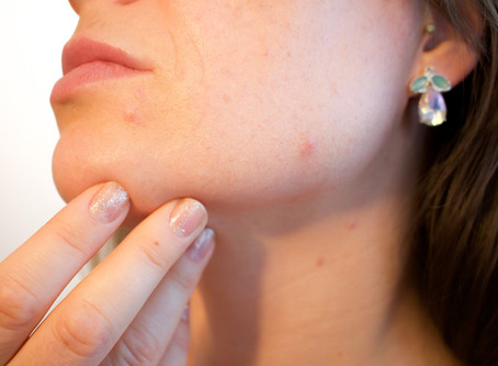 Acne Treatment: When bad skin happens to Teens and Adults