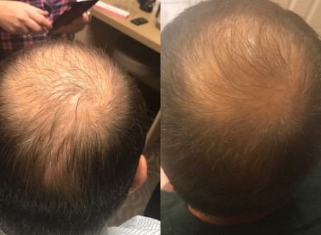 Natural, Non-surgical Hair Loss Treatment for Men and Women – that works!