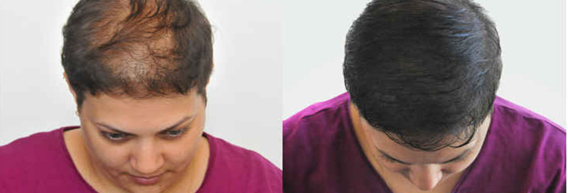 effet-densite-perte-cheveux-femme-bruxel