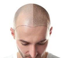 i41945-alopecie-tout-savoir-sur-la-perte