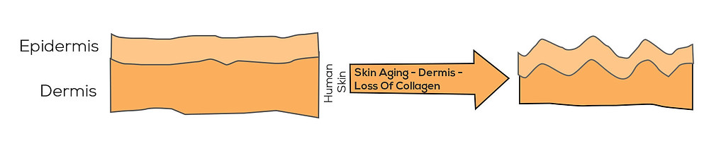 Epidermis and Dermis imager, loss of collagen over time