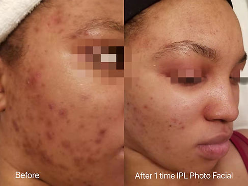 one treatment after IPL Photo Facial
