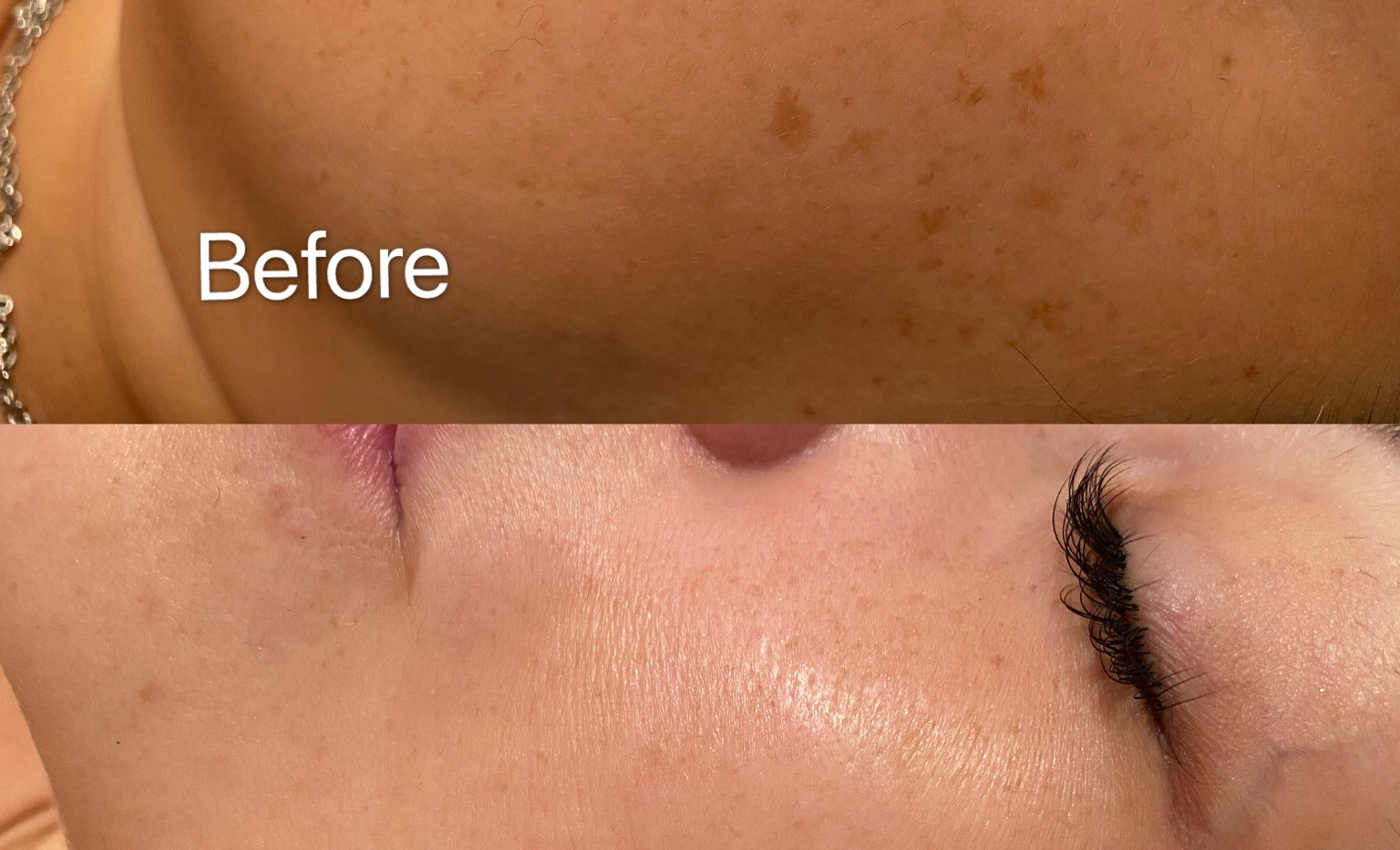 Freckle and sun spots removal