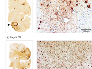 What Is CTE And How Bad Is It?