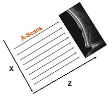 b-scan.jpg
