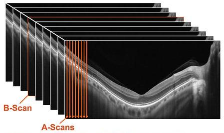 ab-scans.jpg
