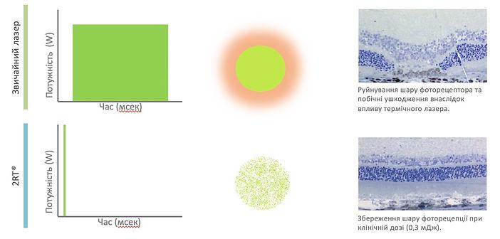 2rt vs thermo laser.jpg