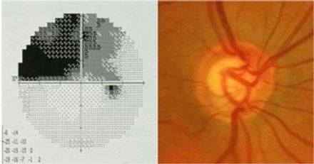 glaucoma_exam.jpg