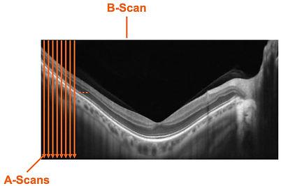b-scanS.jpg