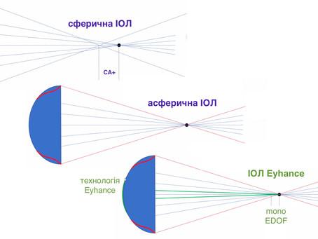 Tecnis Eyhance: шо саме надає проміжний зір?