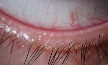 Blepharitis-1024x480.jpg