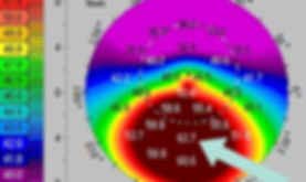 Pentacam+corneal+curvature+scan+showing+