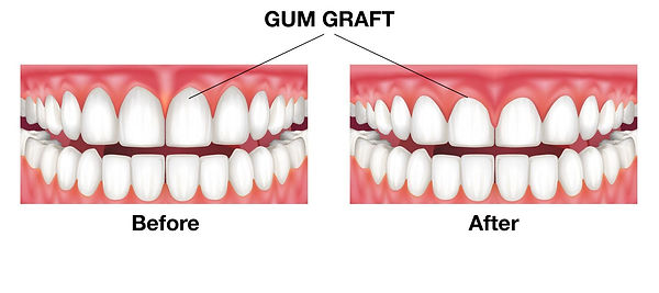 gum graft houston.jpg
