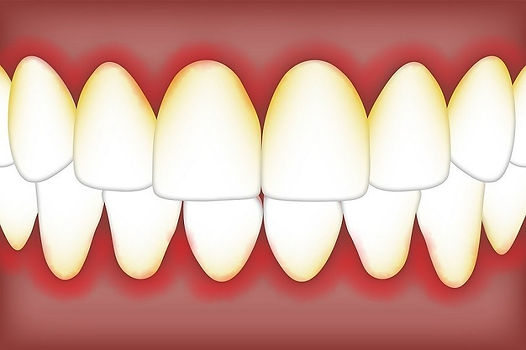 Causes-and-Treatments-for-Periodontitis.