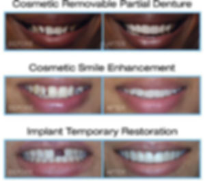 Snap on smile reviews