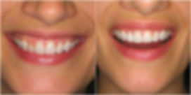 Veneers Houston
