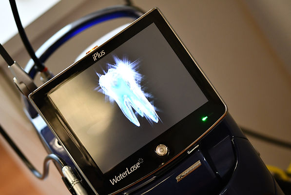 Waterlase Laser Dentist Houston.jpg