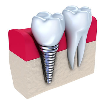 dental implants cost near me