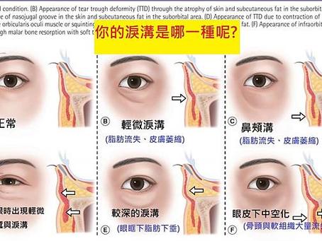 淚溝學問大,你的淚溝是屬於哪一種呢?
