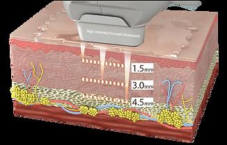 高頻尖峰鎖定真皮層及SMAS筋膜層.png