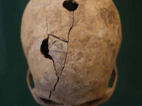 Why Our Ancestors Drilled Holes in Each Other's Skulls