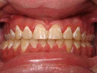 Discolored Teeth