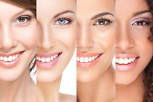 Veneers: Dental veneers are your key to a Hollywood smile